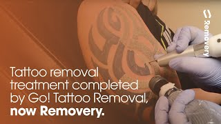 Laser Tattoo Removal Of A Tribal Half Sleeve