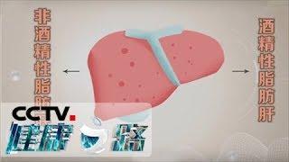 [健康之路]脂肪肝最爱找上谁 长期饮酒容易引发脂肪肝| CCTV科教