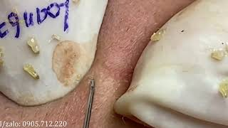 BECAUSE OF ACNE THAT CAME Loan Nguyen spa (67) | Loan Nguyen
