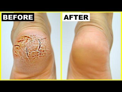 फटी एड़ियां से छुटकारा पाये - Cracked Heels Home Remedy | Anaysa