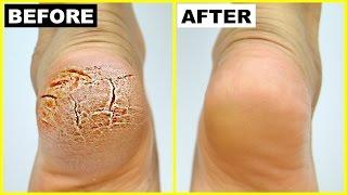 फटी एड़ियां से छुटकारा पाये - Cracked Heels Home Remedy | PrettyPriyaTV