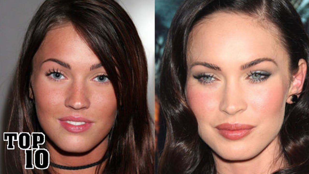 Top 10 Celebrities You Didn T Know Had Plastic Surgery