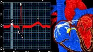 Работа сердца электрокардиограмма(, 2010-08-31T08:31:03.000Z)