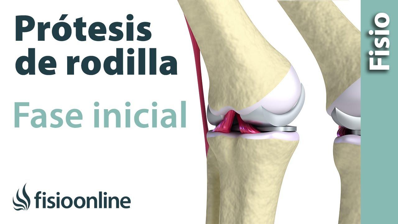 precio operacion protesis de rodilla