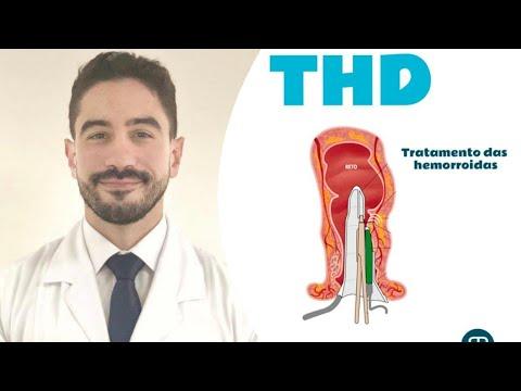 Cirurgias para Hemorroidas