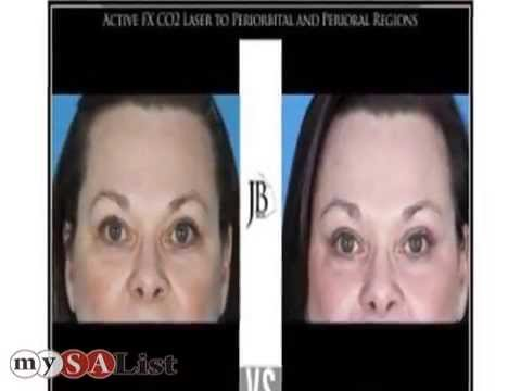 Facial jose plastic san surgery