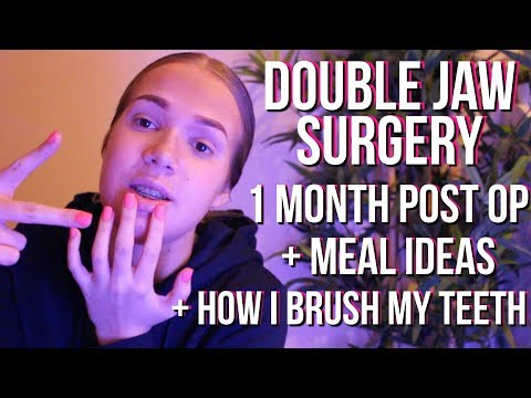 Double Jaw Surgery 1 Month Post Op + Meal Ideas & How I Brush My Teeth
