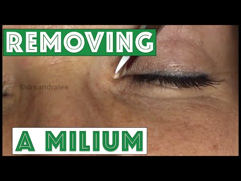 Extracting Milia On The Edge Of The Eye