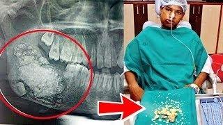 У мальчика из Мумбая вырвали 232 зуба(У мальчика из Индии воплотился в жизнь самый страшный кошмар: во время его последнего визита к зубному ему..., 2014-08-06T15:37:09.000Z)