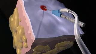 How Liposuction Works Animation - Liposuction Procedure Video