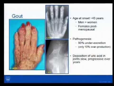 Rheumatology Pearls- Dr. John M. Davis, III, 8/20/14