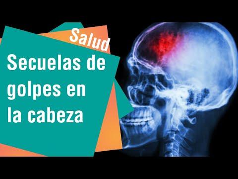 ¿Puede una protuberancia en la cabeza causar un coágulo de sangre?