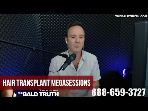 Hair Transplant Megasessions - Discussing The Downsides - Spencer Kobren's The Bald Truth Ep. 153