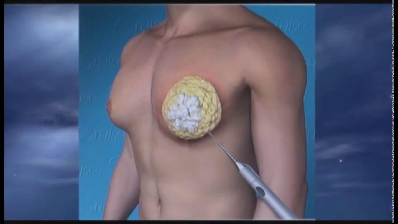 Мужской сосок в разрезе фото, эротические приключения женщин с сексом видео
