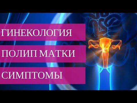 ПОЛИП ПОЛОСТИ МАТКИ - симптомы заболевания