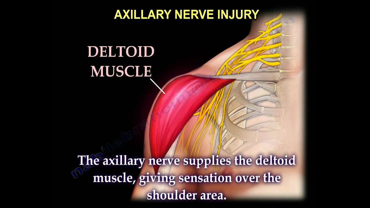 nerve injury injuries complete everything you need to
