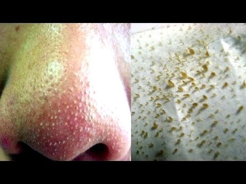 Top 11 Simple and Effective Natural Remedies for Blackheads Removal
