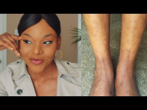 how-i-treat-veins,-discoloration,-&-severe-hyperpigmentation-on-legs