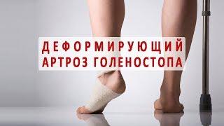 видео Болят мышцы ног без причины: лечение и факторы влияния на боли