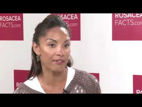 rosacea-treatment-and-skin-care-tips-from-dermatologists