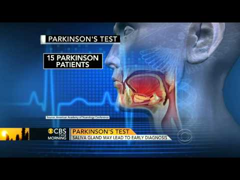 Saliva could be used to diagnose Parkinson's: Study