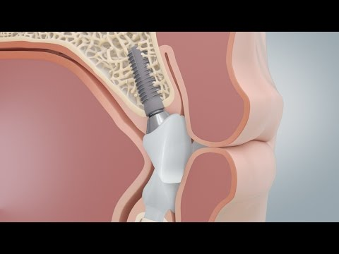 Comparison of dental implants and bridges (CAMLOG) - Animation Medizin