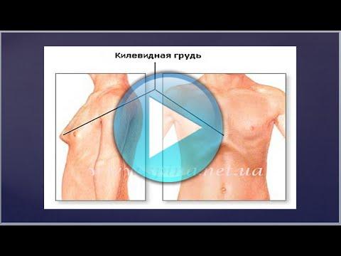 Сколиоз грудной клетки