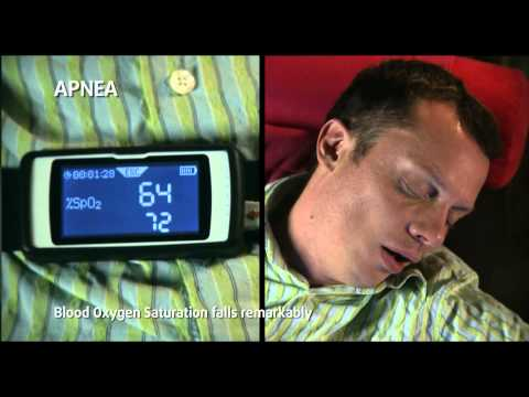 Quick Guide: Sleep test with MIR Spirodoc® Spirometer with Oximetry option