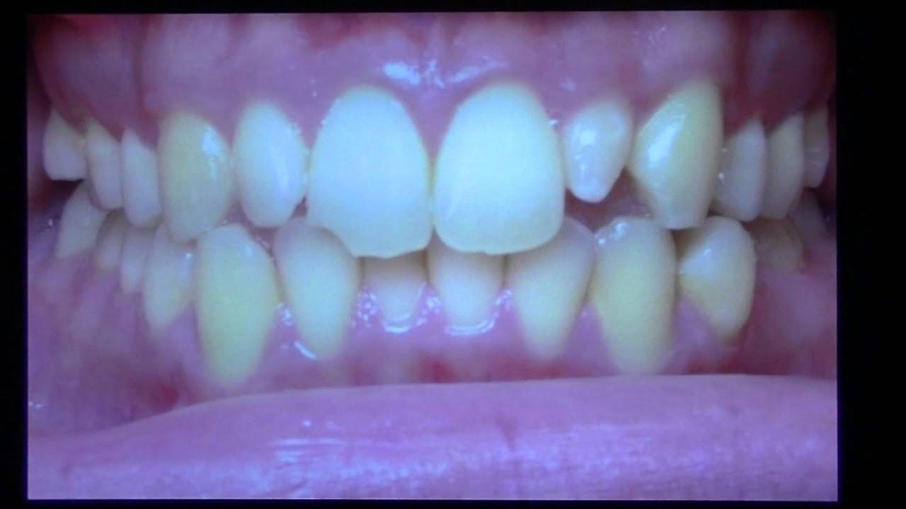 Invisalign - Perfect Smiles - NYC Orthodontist in Manhattan fix ...