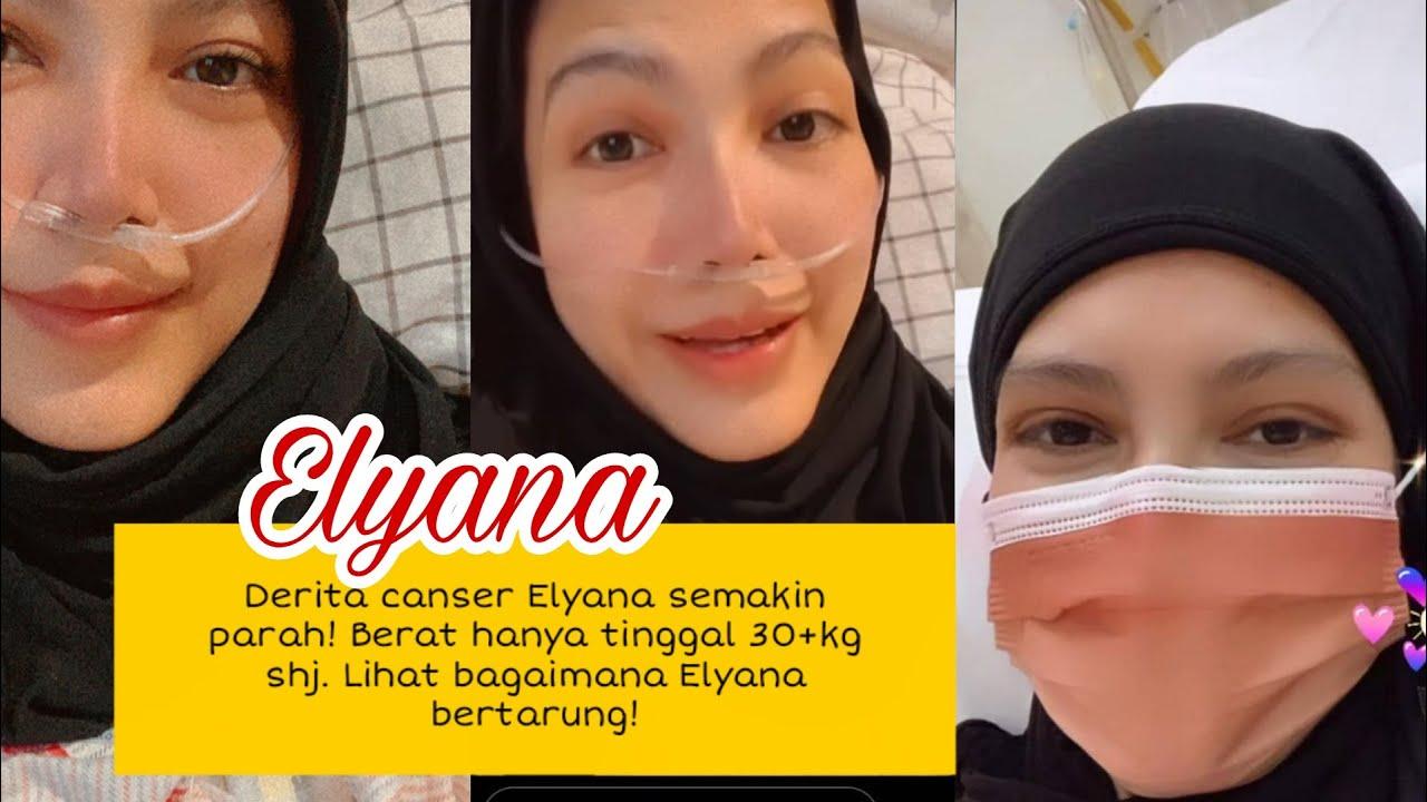 Elyana semakin kurus! berat tinggal 30+kg? elyana kini derita canser tahap 4