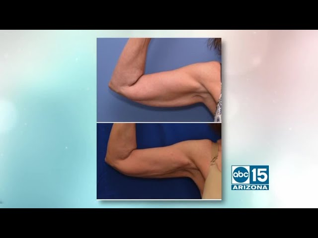 Natural Results Plastic Surgery Offers New J Plasma Skin Tightening Treatment Youtube