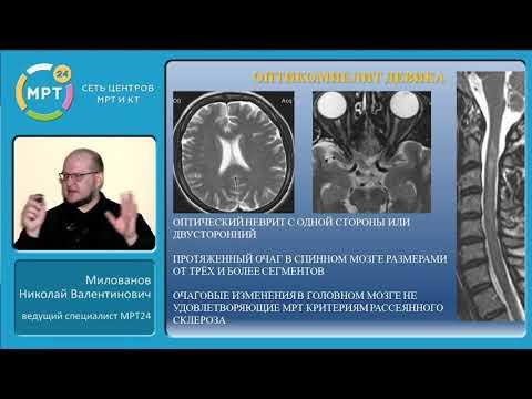 Очаговые изменения спинного мозга