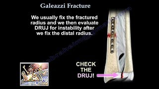 Galeazzi Fracture - Everything You Need To Know - Dr. Nabil Ebraheim