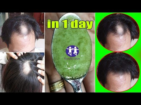 Fight Hair Loss in 1 day | Hair fall Control | Super easy hair oil remedy hair loss treatment