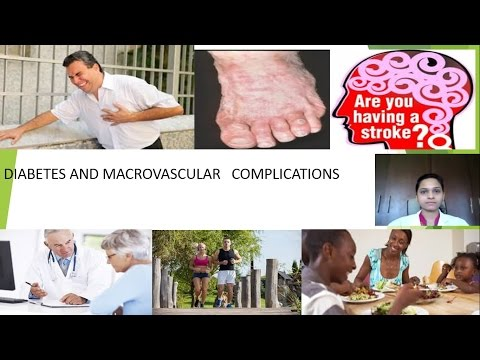 DIABETES AND MACROVASCULAR COMPLICATIONS