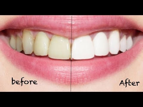 How To Whiten Teeth In 3 Minutes No Baking Soda No Lemon Youtube