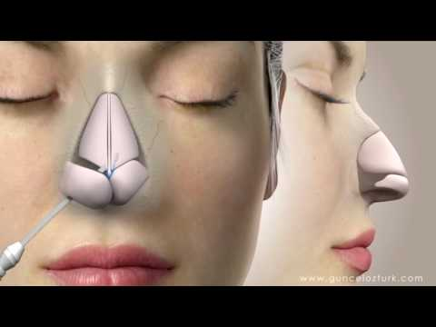 Kapalı (İzsiz) Burun Estetiği Ameliyatı Nasıl Yapılır ? Op. Dr. Güncel Öztürk