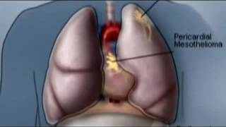 Law Firm - Mesothelioma attorneys
