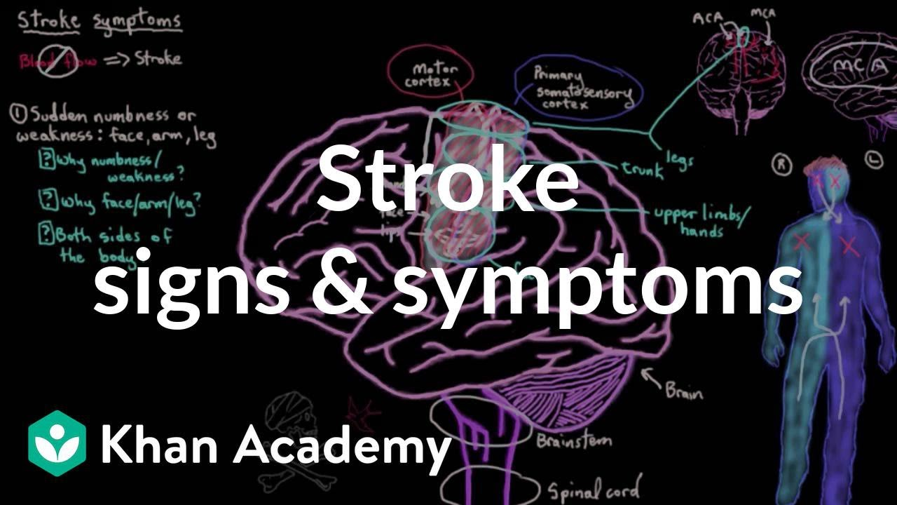 Common stroke signs and symptoms