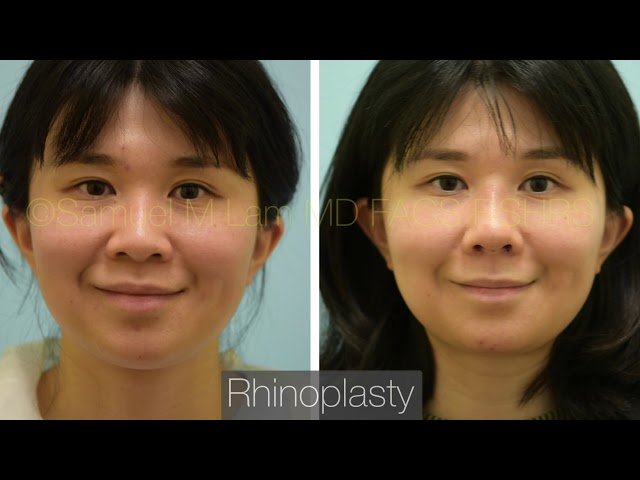 Dallas Asian Rhinoplasty Before and One Week After