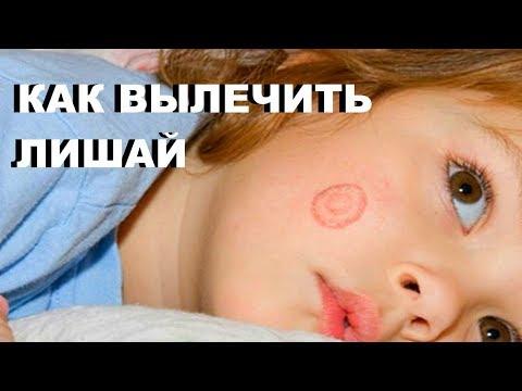 Как лечить лишай у человека на лице