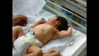 Etapas del desarrollo de la primera infancia segun Spitz.
