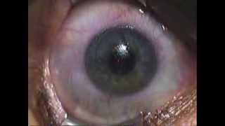 Miopia e Presbiopia: correzione laser