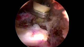 Arthroscopic ( Key Hole) Capsular Release For Frozen Shoulder 2014