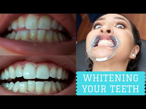 MY TEETH ARE WHITE AF!!! (UNDER 1 HOUR) Smiles Of Melbourne Teeth Whitening 2017