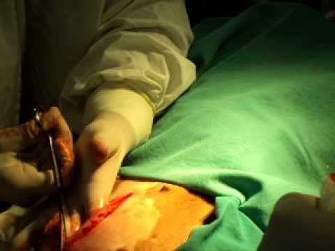 Resultado de imagem para castração dehomem