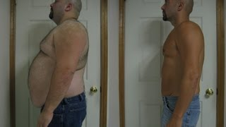 GASTRIC BYPASS SURGERY BEFORE AND AFTER 172lbs WEIGHTLOSS