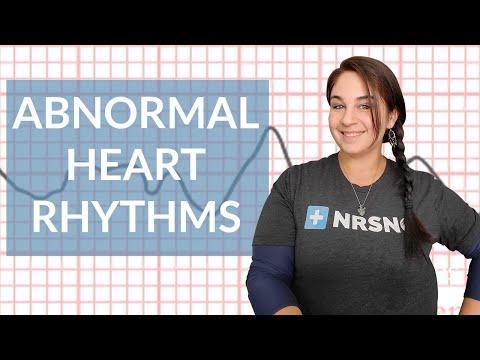 EKG like a BOSS Part 3 Abnormal Heart Rhythms