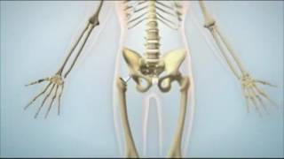 Prothèse totale de la hanche (PTH)