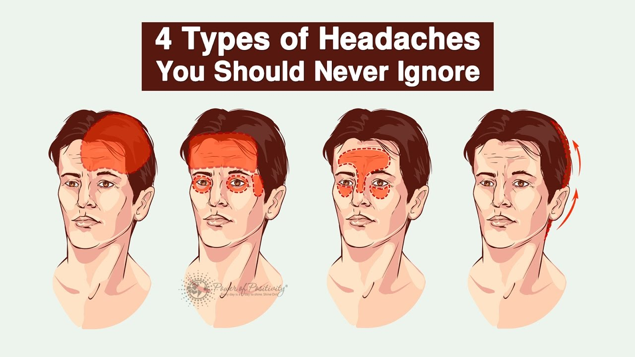 4 types of headaches you should never ignore youtube. Black Bedroom Furniture Sets. Home Design Ideas